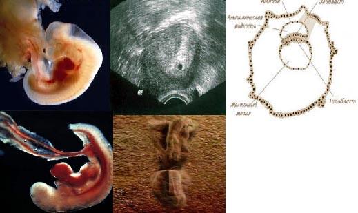 календарь беременности по неделям, беременность 4 недели, 1 триместр