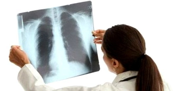 воспаление легких, пневмония