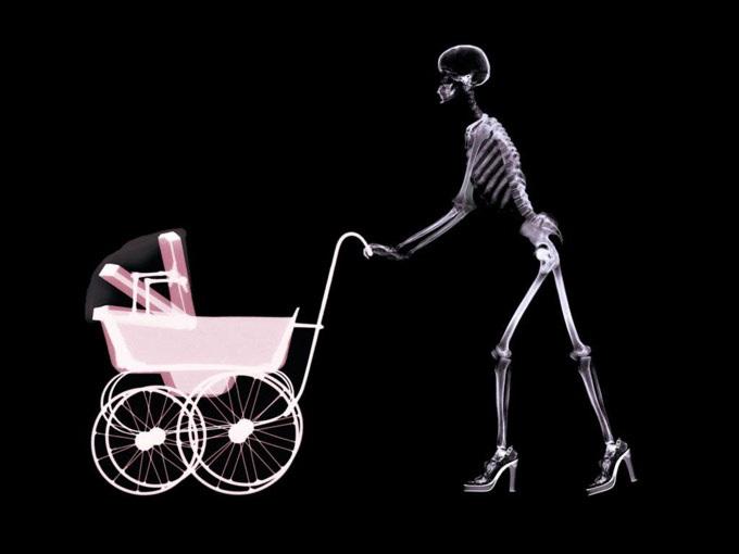 рентген, исследования