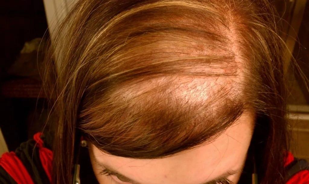 Елена Малышева, Жить здорово, Почему выпадают волосы у женщин, передача